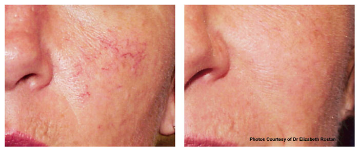 Redness Vascular Lesions Skin Cancer Surgery General