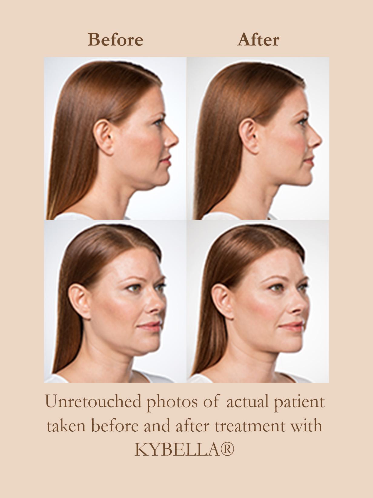 Kybella 174 Skin Cancer Surgery General Dermatology